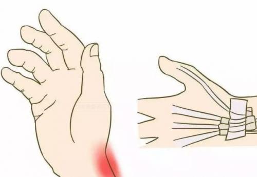 肘关节脱位患者日常注意事项